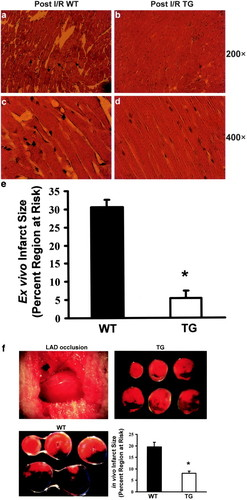 Novel Cardioprotective Role of a Small Heat-Shock Protein, Hsp20