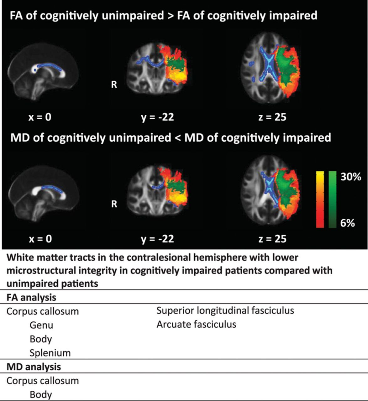 Remote Lower White Matter Integrity Increases the Risk of Long-Term