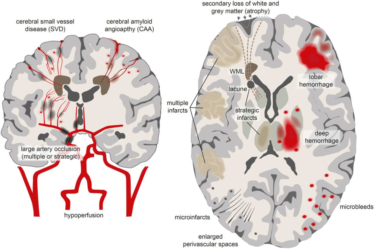 Cognition And Behavior White Matter >> Vascular Cognitive Impairment Circulation Research