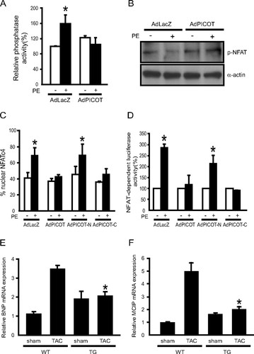PICOT Attenuates Cardiac Hypertrophy by Disrupting Calcineurin–NFAT