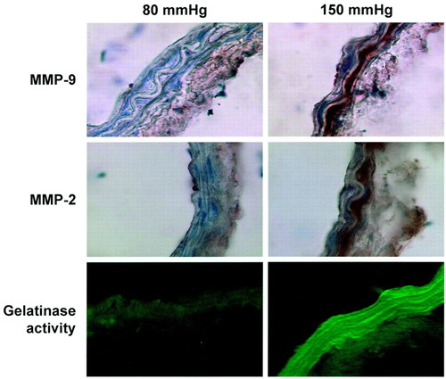 Pressure-Induced Matrix Metalloproteinase-9 Contributes to