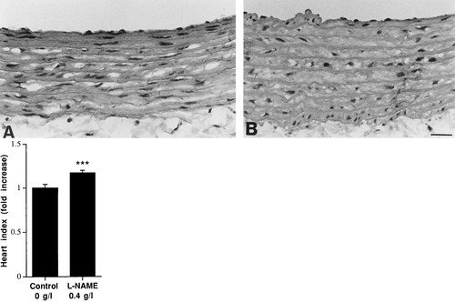 Aortic Connexin43 Is Decreased During Hypertension Induced by