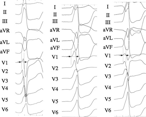 Mapping and Ablation of Epicardial Idiopathic Ventricular