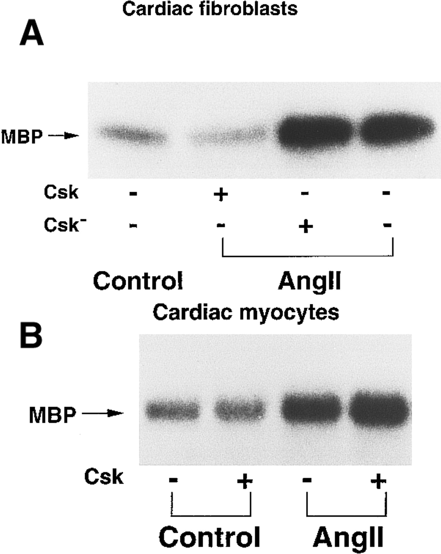 Cell Type–Specific Angiotensin II–Evoked Signal Transduction