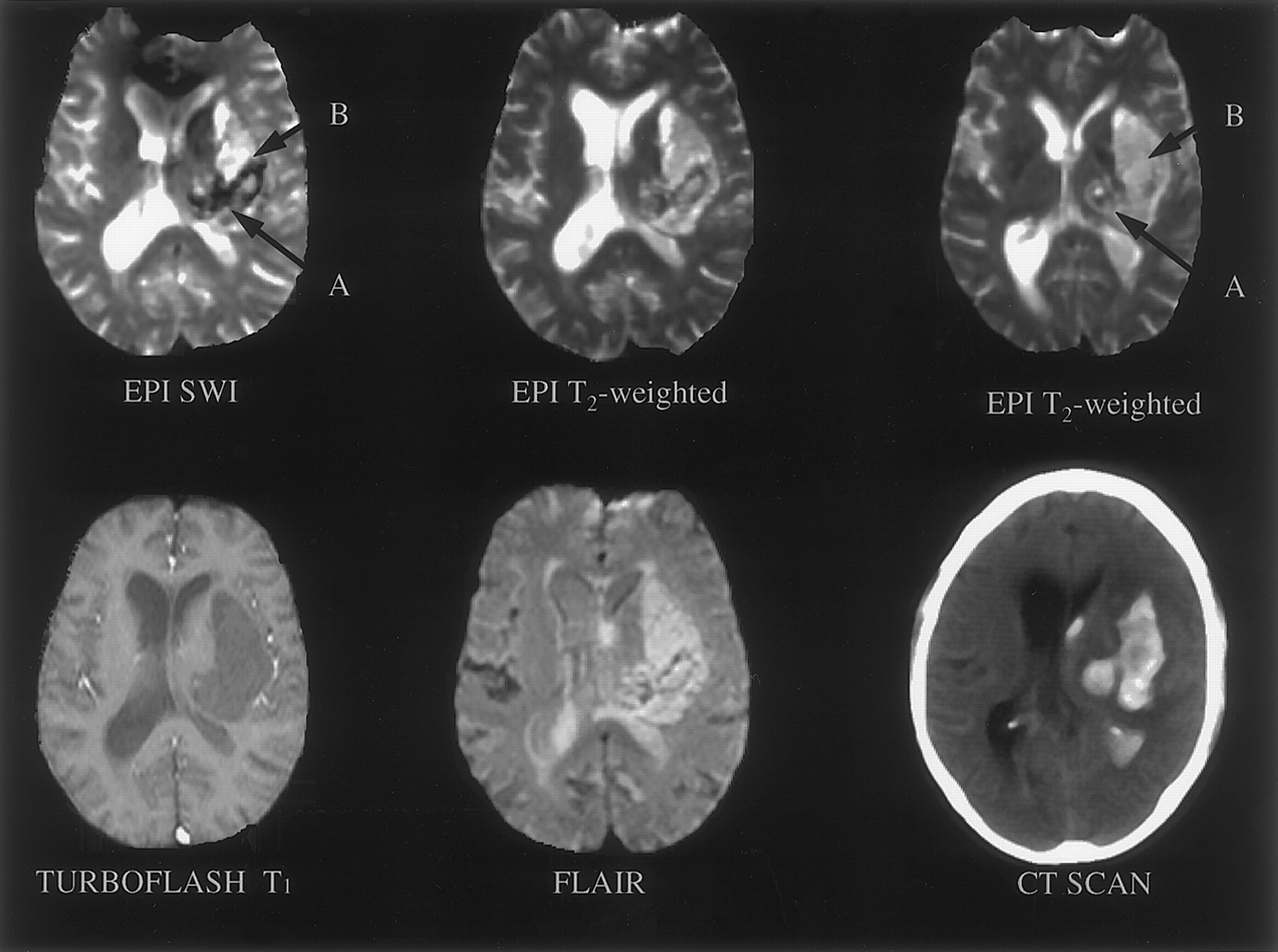 MRI Features of Intracerebral Hemorrhage Within 2 Hours From