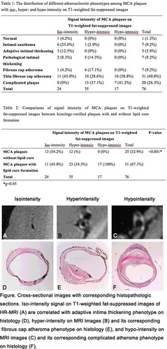 Abstract 21: Hypo-intensity of MRI Vessel Wall Imaging