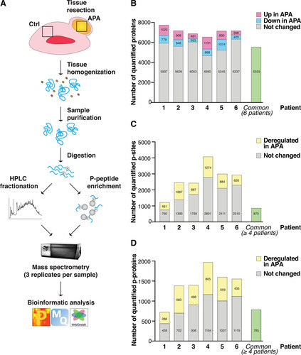 Proteomic Landscape of Aldosterone-Producing Adenoma | Hypertension