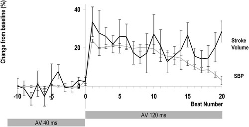 The Acute Effects of Changes to AV Delay on BP and Stroke Volume