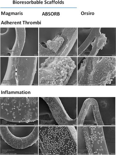 Comparison of Acute Thrombogenicity for Metallic and