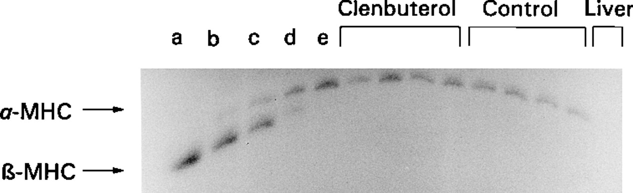 Clenbuterol Induces Hypertrophy of the Latissimus Dorsi