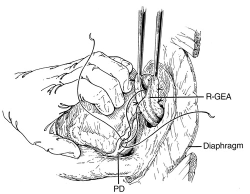 Which Is The Graft Of Choice For The Right Coronary And Posterior