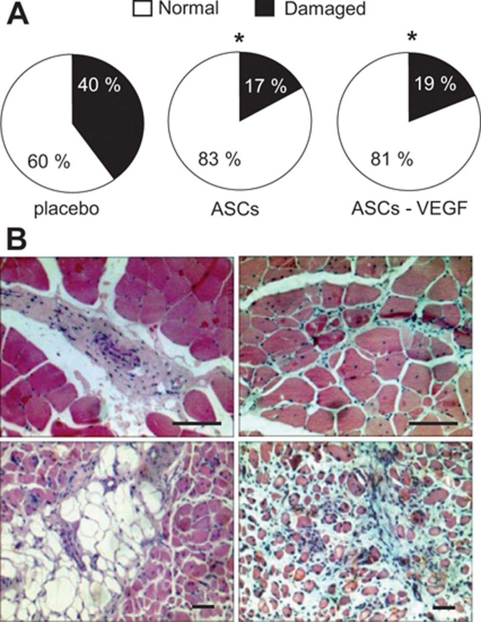 Vascular Endothelial Growth Factor Overexpression Does Not Enhance