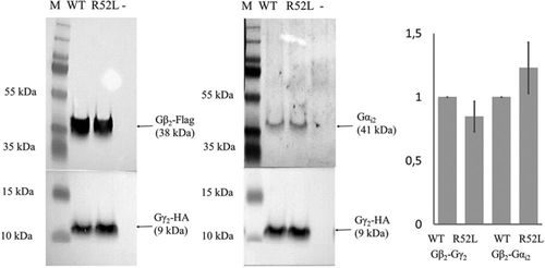 A Mutation in the G-Protein Gene GNB2 Causes Familial Sinus Node and