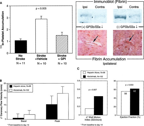 Recognition Of The Importance Of Embolization In Atherosclerotic