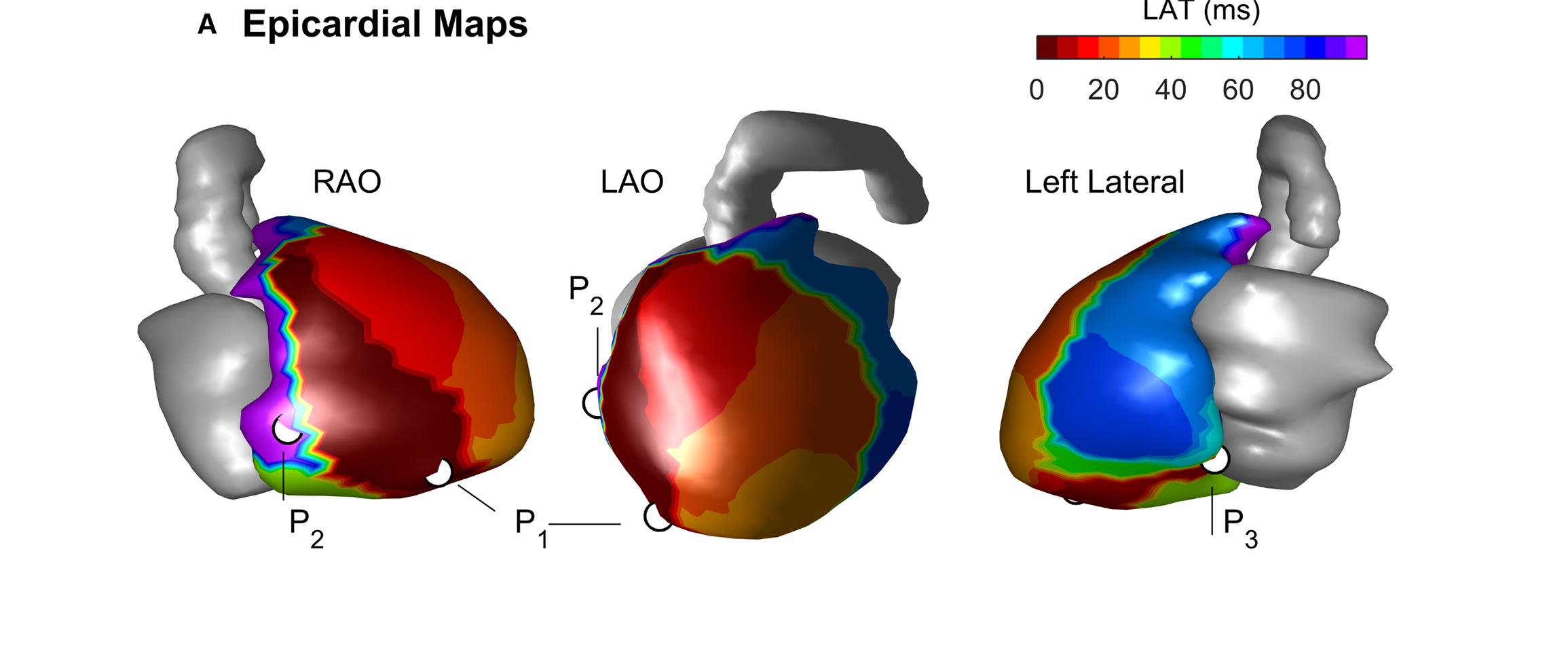 Journal of the American Heart Association   AHA/ASA Journals