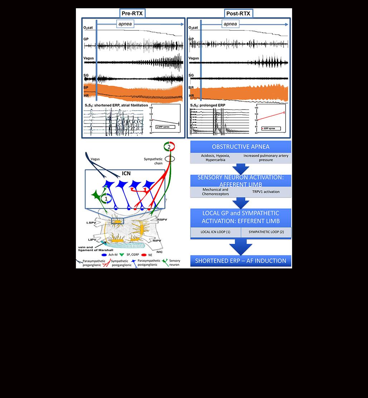 Circulation: Arrhythmia and Electrophysiology | AHA/ASA Journals